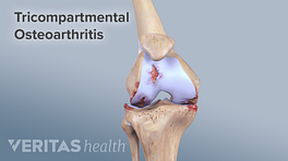 Skeletal view of tricompartmental osteoarthritis in the knee