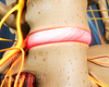 Anterior view of lumbar spine with a degenerated disc.