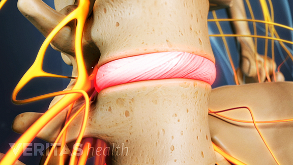 Inflamed disc between two vertebrae, highlighted in red to indicate pain