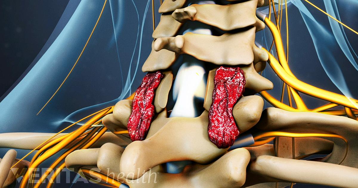 Surgery For Neck Pain Symptoms