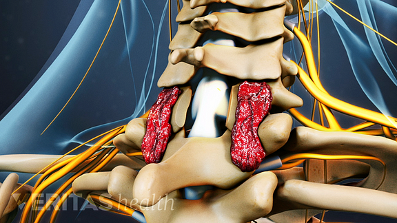 Medical illustration of a fusion surgery