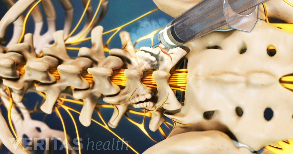 Pain Injections Articles And Videos On Injection