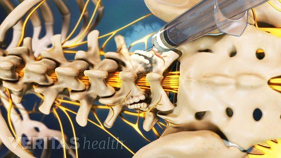 Medial Nerve Branch