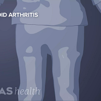 View of the torso showing hands at the sides with rheumatoid arthritis in the hands.