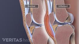 Medical illustration of inflamed knee bursa