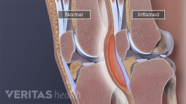 Medical illustration of inflamed knee bursa