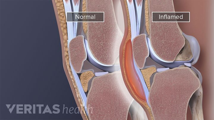What Causes a Swollen Knee (Water on the Knee)?