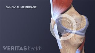 Medical illustration of the synovial membrane in the knee