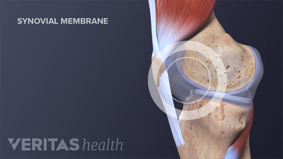Illustration of synovial membrane in the knee