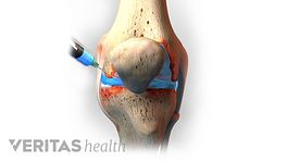 Knee injection illustration