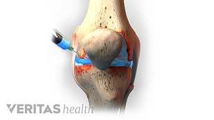 Knee injection illustration