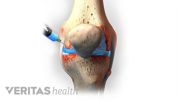 Medical illustration of needle being injected into the knee joint.