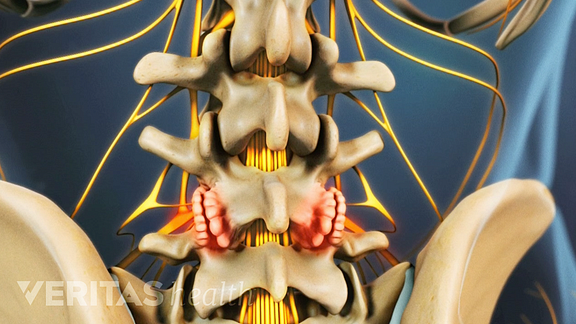 Medical illustration showing bone spurs in the lower spine caused by osteophytes
