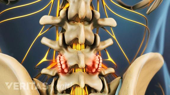 lumbar bone spurs osteophytes