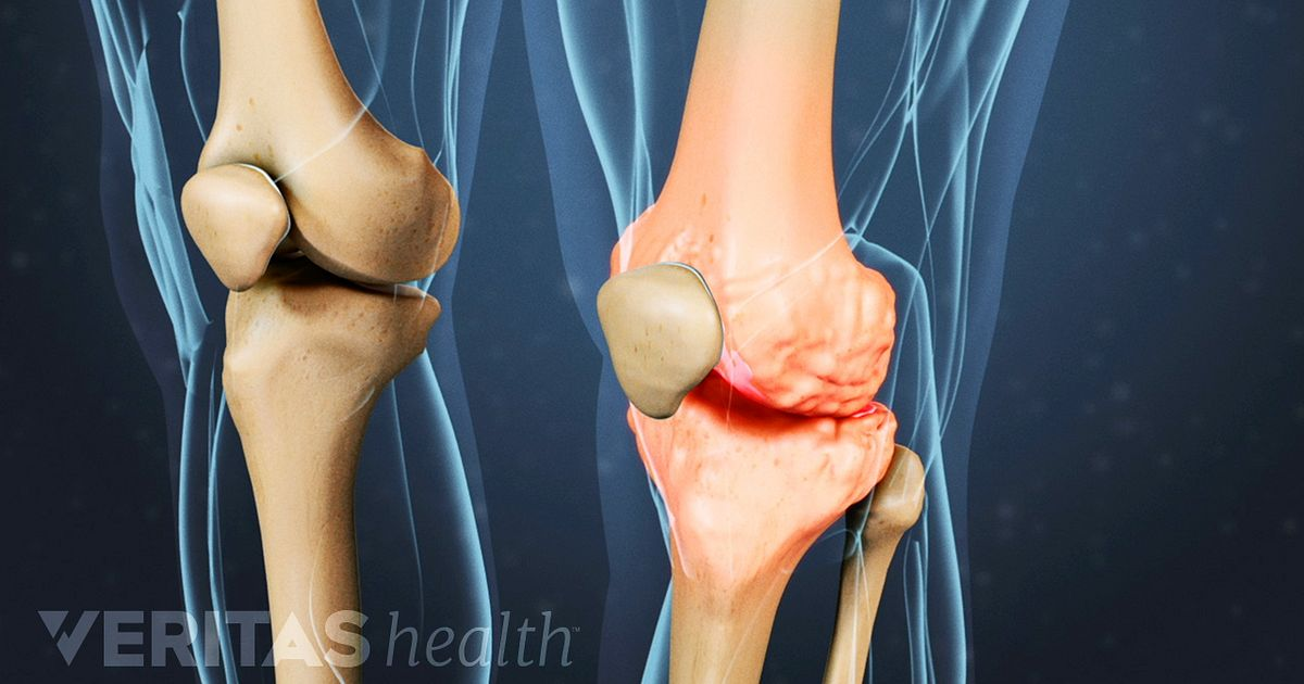 What is Knee Osteoarthritis? | Arthritis-Health