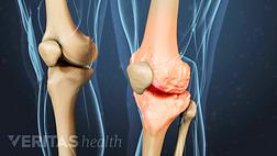 Medical illustration of the knee showing knee osteoarthritis