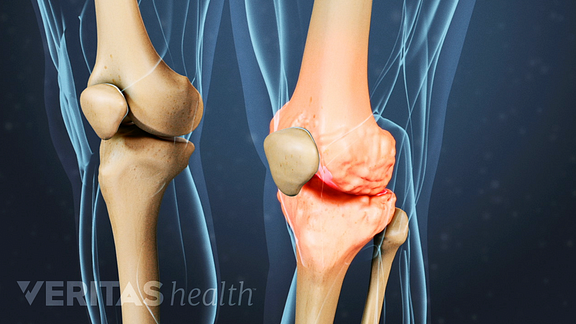 Illustrated skeleton view of osteoarthritis in the knee