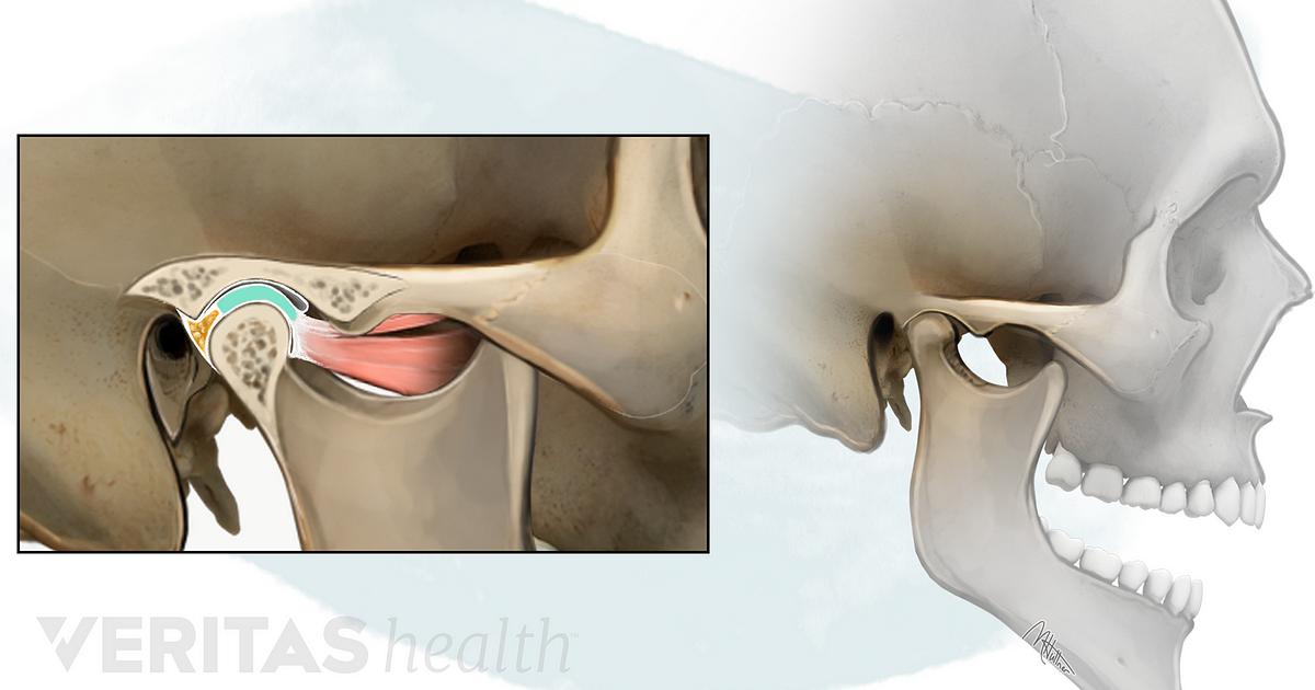 Temporomandibular Joint Tmj Disorders An Overview