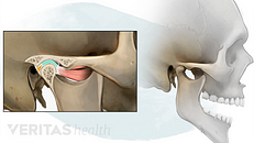 Temporomandibular Joint (TMJ) Disorders: An Overview