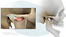Temporomandibular Joint (TMJ) Disorders: An Overview