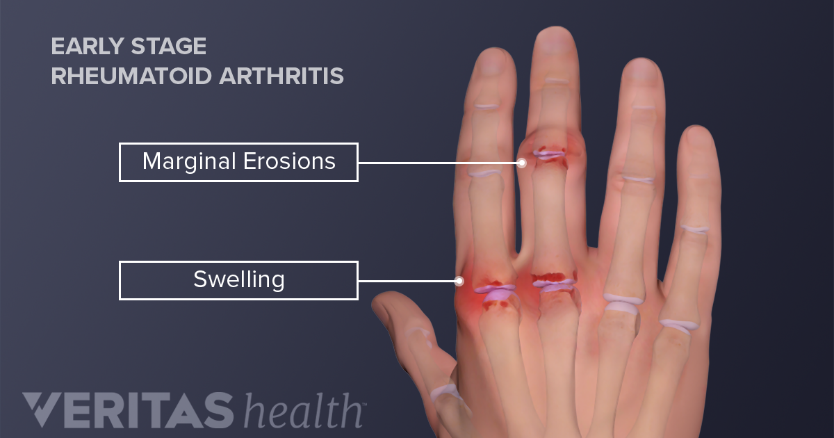 Wrist and thumb sign
