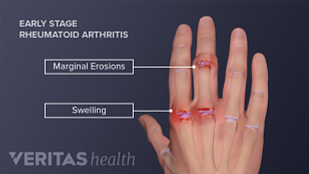 Medical illustration of a hand with rheumatoid arthritis symptoms, including swelling and marginal erosion in the joints