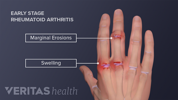 Inflammation, swelling, and stiffness in the knuckles and wrists can be the first signs of RA.