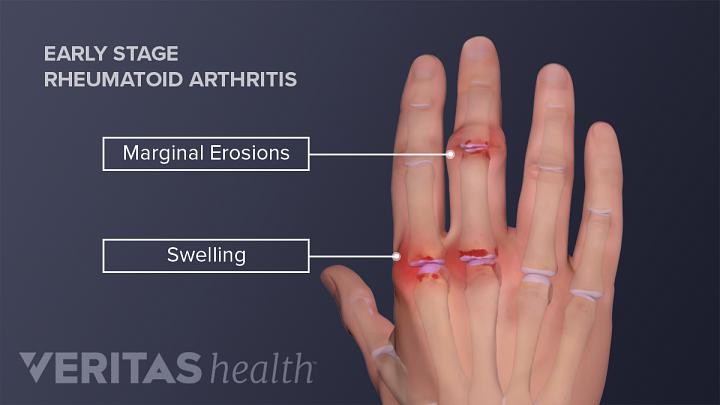 Hand Rheumatoid Arthritis Signs and Symptoms