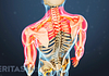 Animated video still showing the symptoms area of cervical radiculopathy (neck, shoulders, arms, and hands)