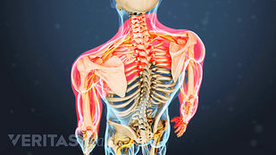 Illustration of adult spine with pain area in neck shoulders and arms highlighted in red