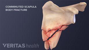 scapula shoulder fractures
