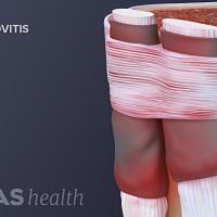 Wrist tendons showing pain from tenosynovitis.