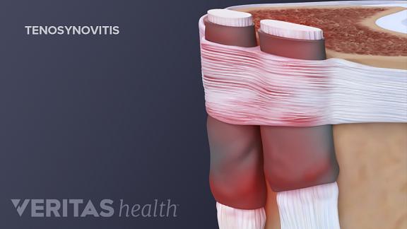 De Quervain's tenosynovitis cause thumb pain and stiffness