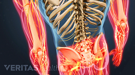 Posterior view of pain in the legs and arms caused by Degenerative Disc Disease.