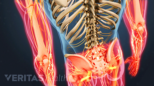 radicular pain