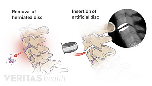 Illustration of the surgical process of an artificial disc replacement surgery