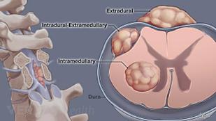 spine tumor