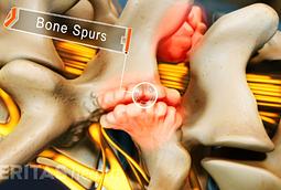 image highlighting lumbar osteophytes