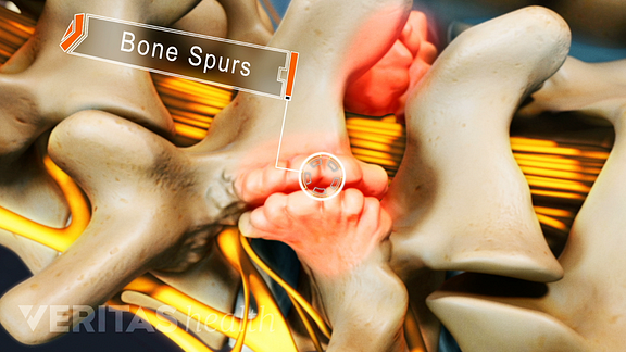 Posterior view of the spine showing bone spurs on facet joints.