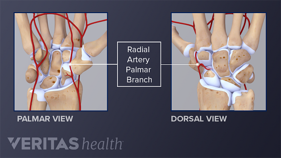 Palmar and dorsal view of the hand showing the radial artery
