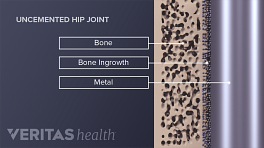 Medical illustration showing a microscopic view of uncemented hip joint. Bone, bone ingrowth, and metal are labeled.