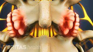 Lumbar Osteophytes