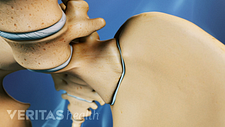 Anterior view of pelvis focused on SI joint.