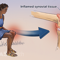 Woman seated in a chair with reactive arthritis highlighted in the inflamed synovial tissue.