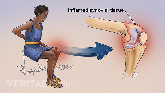 Illustration of inflamed synovial tissue in the knee cause by psoriatic arthritis