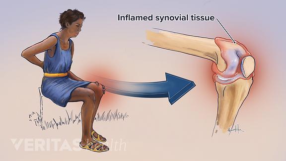 6 Types of Arthritis the Affect the Knee | Arthritis-Health
