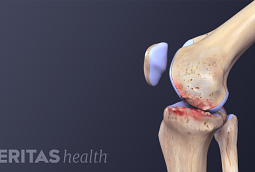Illustration of a side view of a knee with osteoarthritis