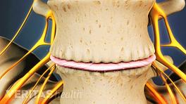 Focused on bone spurs of osteophytes on two vertebra.