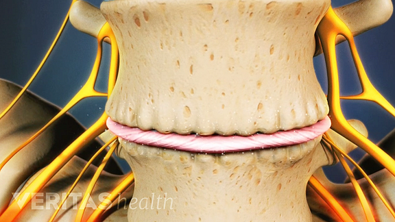 Animated still image of osteophytes from joint degeneration