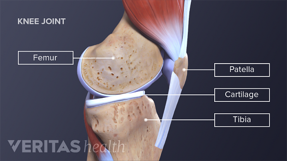 Whats Causing My Knee Pain